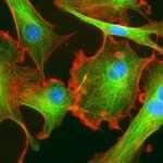 Почему роль фибробластов в человеческой жизни настолько велика?