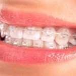 Красивая улыбка: через брекеты Damon-Q к идеалу