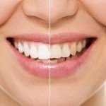 Установка виниров на зубы: главные преимущества