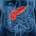 Инновационное лечение рака поджелудочной железы с помощью наночастиц в Израиле