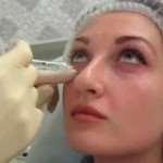 Коррекция носослезной борозды