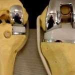 Эндопротезирование – современный способ замены поврежденного коленного сустава