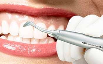 Какие технологии лечения зубов являются самыми современными?
