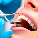Лечение зубов: чем раньше начато, тем лучше