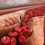 Причины развития атеросклероза и методы его профилактики