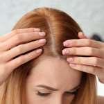 В каких случаях эффективна процедура пересадки волос?