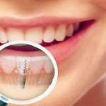 Имплантация зубов в киевской клинике «NANOCLINIC»