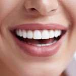 Процедуры отбеливания зубов в МСК