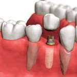 Имплантация зубов — возврат функций челюсти