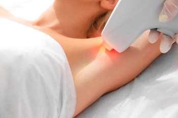 Что такое лазерная эпиляция и ее преимущества
