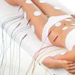 Эффект от электромагнитной стимуляции мышц для фигуры